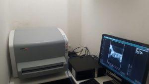 Aparelho de Radiografia Digital.
